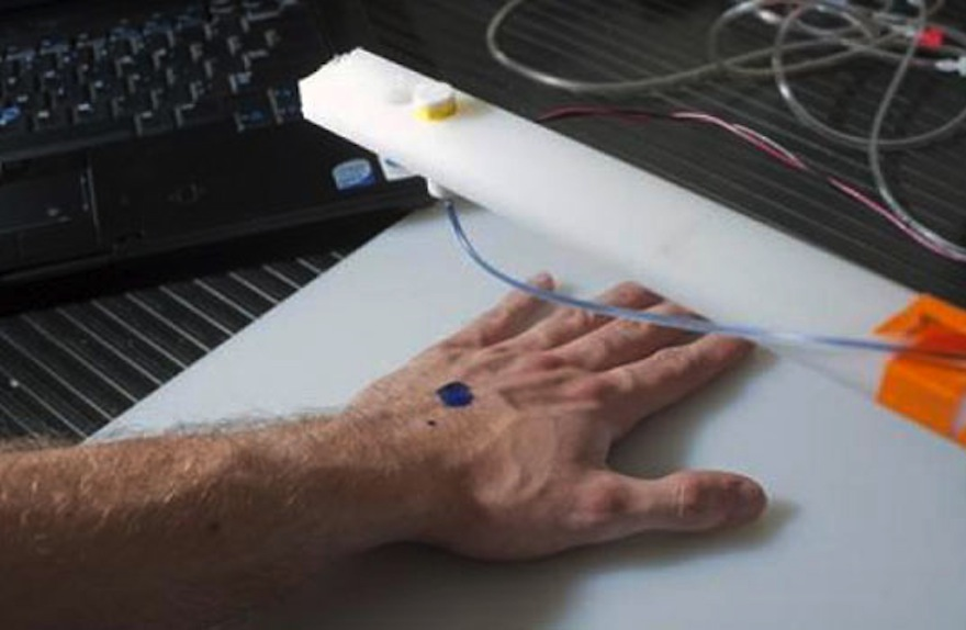 3d printing skin cells directly onto burn wounds