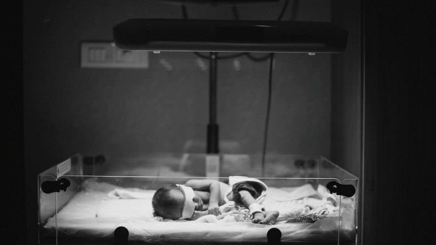 The Brilliance, designed by nonprofit D-Rev, is a phototherapy device designed to treat infants with jaundice in poor communities. Image: D-Rev