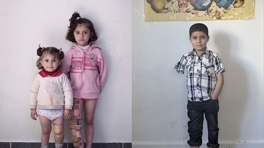 The exhibition will look at wounded Syrians
