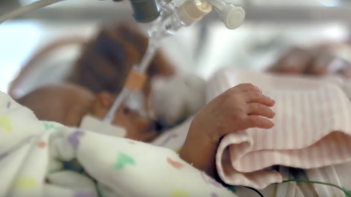 The artificial placenta could help severely premature babies