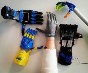 e-NABLE is a nonprofit global network of volunteers using their free time and respective skills to lend a helping hand to underserved children in need of assistive prosthetics