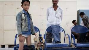 D-Rev, a company focusing on providing quality healthcare to low-income populations, is launching the ReMotion Knee. This is Amin, who was fit with a JaipurKnee in 2011