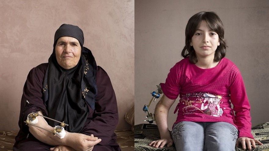 Images of wounded Syrians