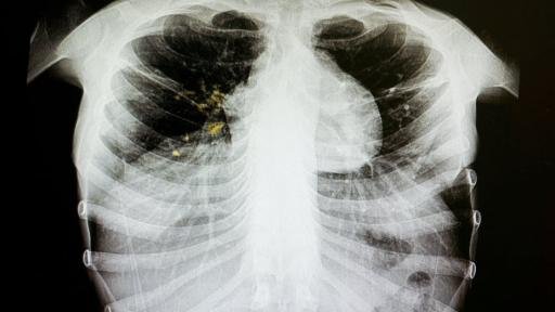 Around 18% of previously treated TB cases are drug resistant. Shutterstock Ruben Cloete, University of the Western Cape