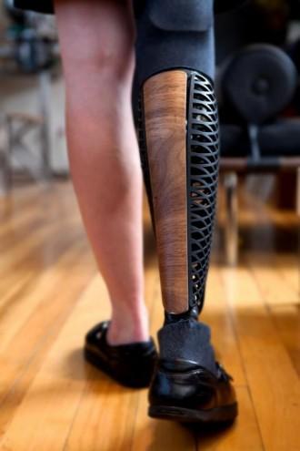 Prosthetics by Bespoke Innovations.