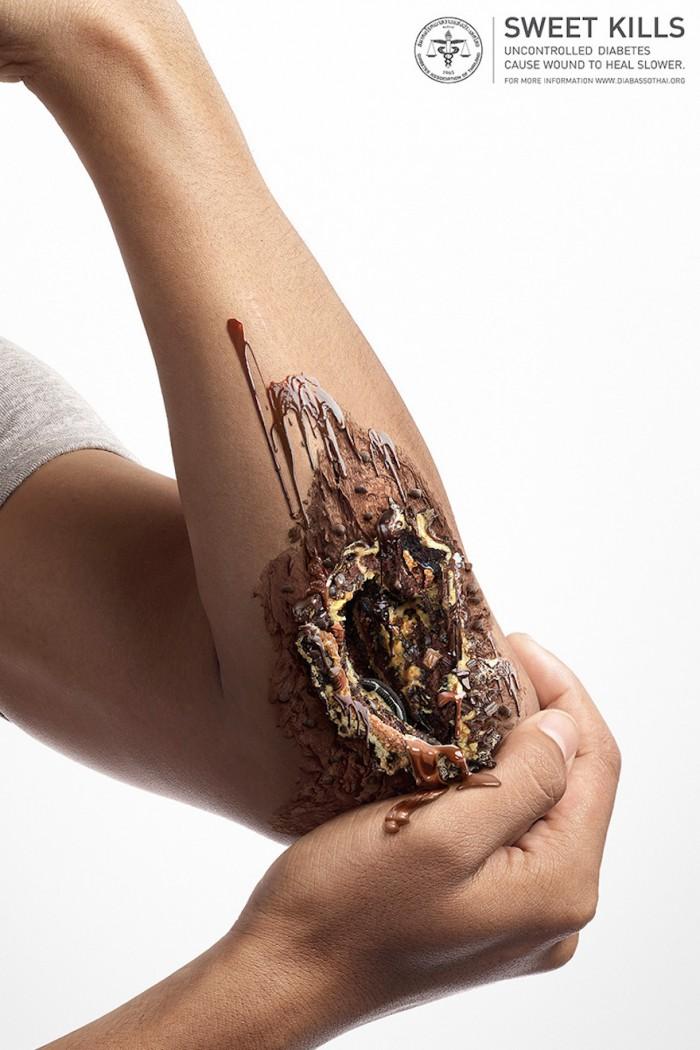 Sweet Kills: A designer's impression of the dangers of diabetes
